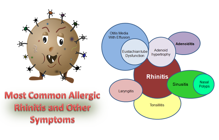 Allergic Rhinitis and Other Symptoms