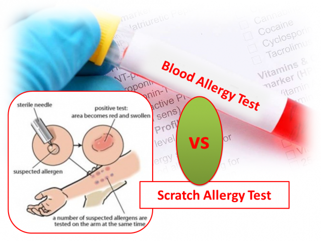 AZ Seasonal Allergies – what are the tests to diagnose and get rid of them!